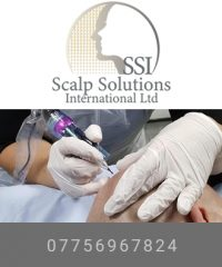 Scalp Solutions international – Scalp Micropigmentation and Hairloss Solutions